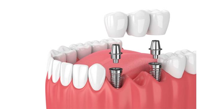 Dental-crown-featured