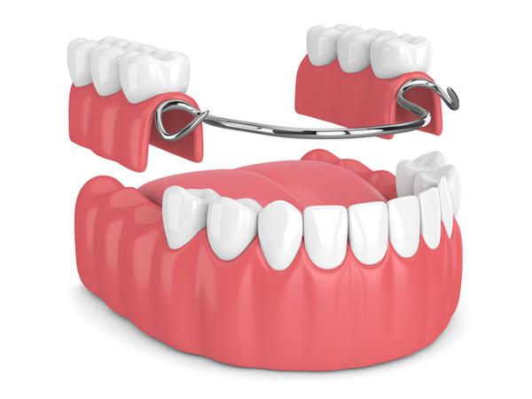 Denture: Partial & Complete